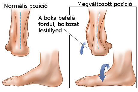 a lábak ízületeinek helyreállítása